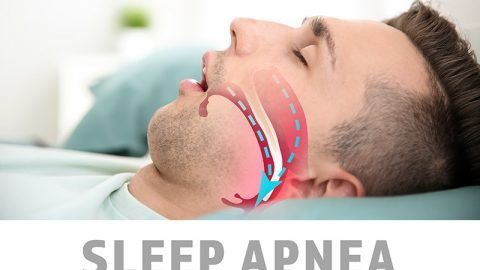 Sleep Apnea Treatments in Hampstead & Jacksonville, NC | Pierpan Dentistry